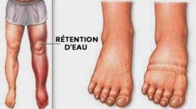 Voici ce qui provoque la RETENTION D'EAU et les GONFLEMENTS au niveau des chevilles, des pieds, des mains et des jambes… plus la Solution pour y remédier!