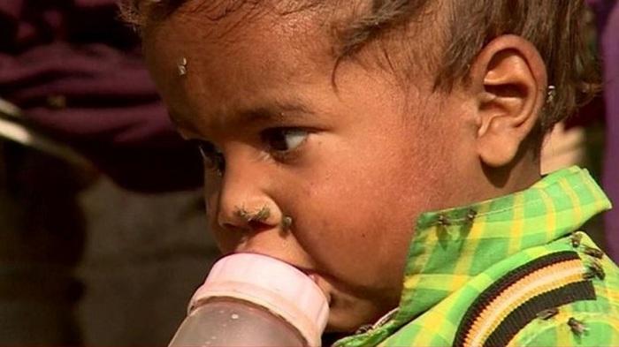 La diarrhée, quatrième cause de la mortalité infantile malgré une baisse d'un tiers…
