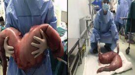Souffrant de CONSTIPATION depuis sa naissance, les médecins retirent 13 kg de matière fécale de son intestin.