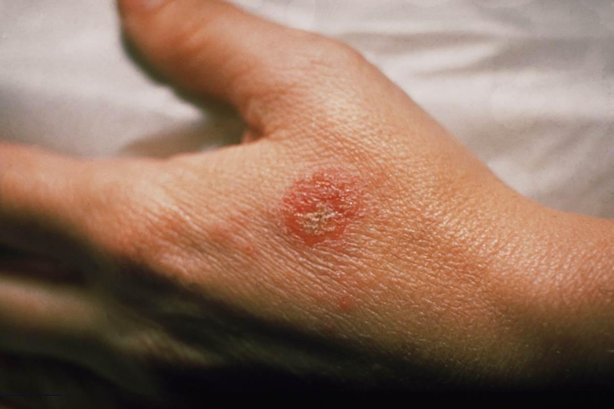 eczema-eczema