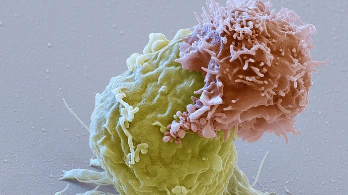 « Living drug », un nouveau traitement qui s'attaque directement aux cellules cancéreuses.