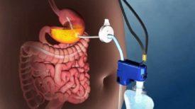 Un nouveau dispositif médical qui permet de traiter l'OBÉSITÉ morbide sans chirurgie.