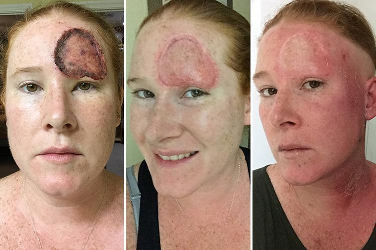 Cette mère garde des photos choquantes de sa guérison du cancer, après l'avoir confondu avec de simples troubles hormonaux.