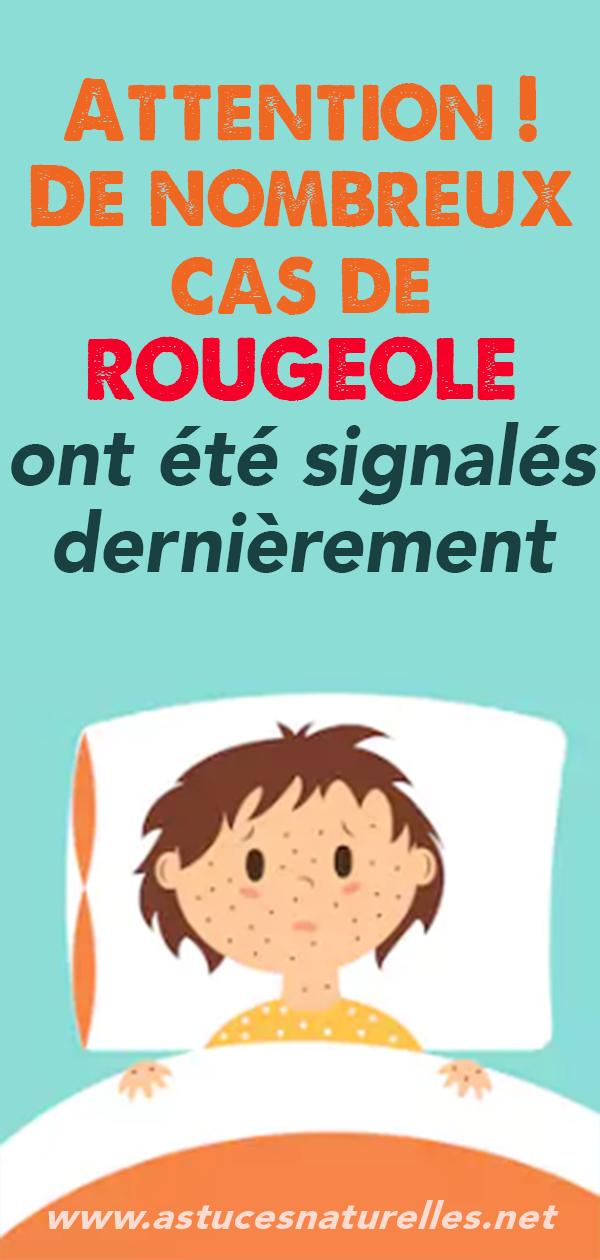 Attention! De nombreux cas de ROUGEOLE ont été signalés dernièrement.
