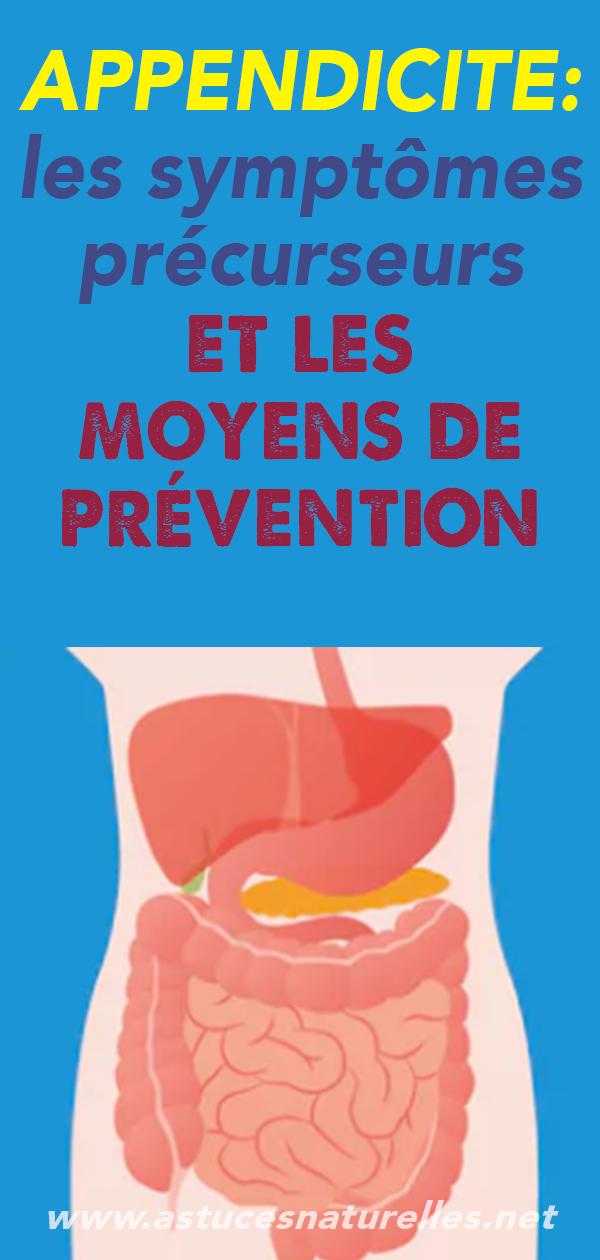 APPENDICITE: les symptômes précurseurs et les moyens de prévention