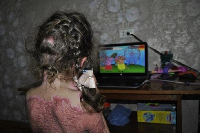 """« Comment devenir une """"fée du feu"""" ? » Un jeu maléfique qui fait des victimes parmi les enfants !"""