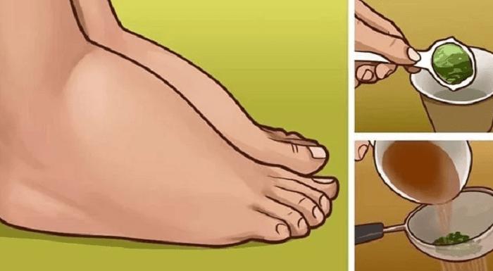 5 problèmes de santé à l'origine des chevilles gonflées, comment les guérir…