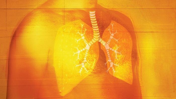 10 aliments à consommer pour guérir la fibrose pulmonaire.