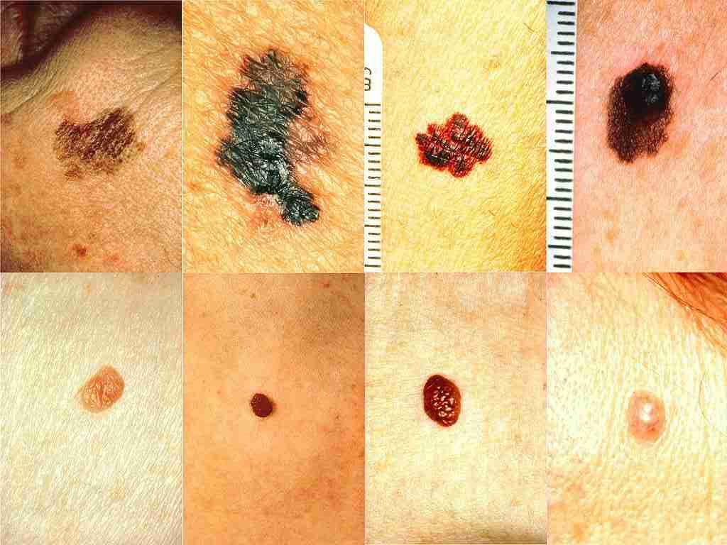 Est-ce une Mole ou un signe du Cancer de la peau