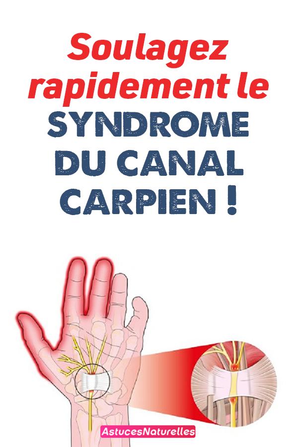 Soulagez rapidement le syndrome du canal carpien !