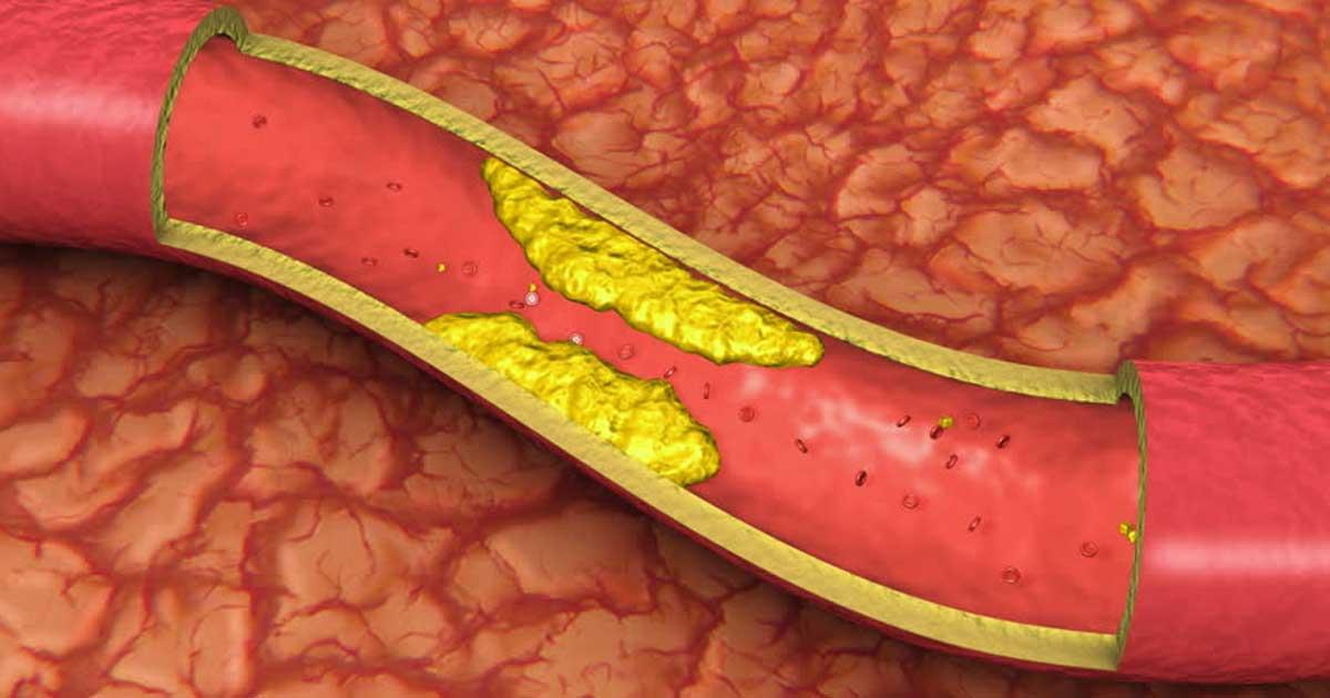 Consommez 4 cuillères à soupe de ce mélange chaque matin pour déboucher les artères obstruées, baisser le mauvais taux de cholestérol et traiter l'hypertension artérielle.