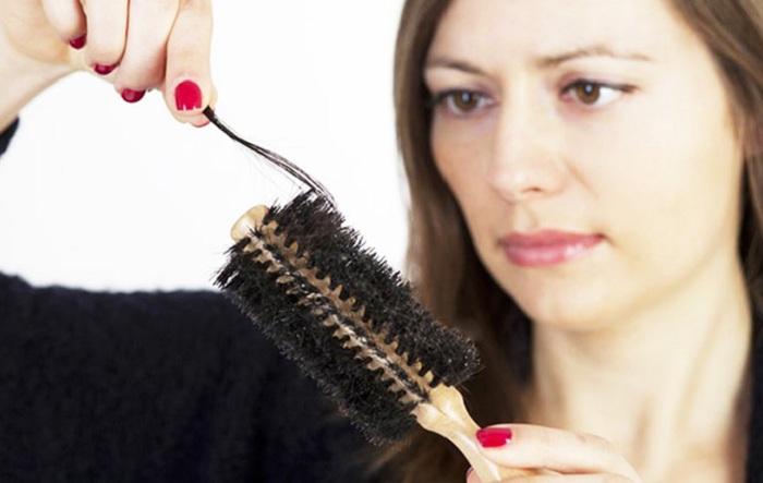 Essayez ces remèdes naturels contre la pelade !