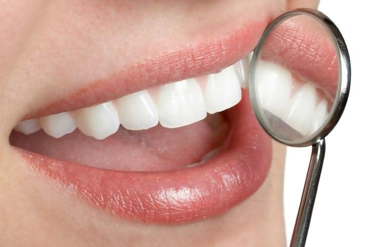 La gingivite : causes, évolution, symptômes et traitement naturel de la maladie.