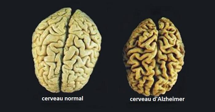 Les 3 vitamines qui empêchent l'atrophie cérébrale et préviennent l'Alzheimer !