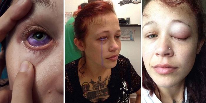 Après s'être fait tatouer son globe oculaire, ce mannequin est partiellement aveugle et souffre de douleur atroce