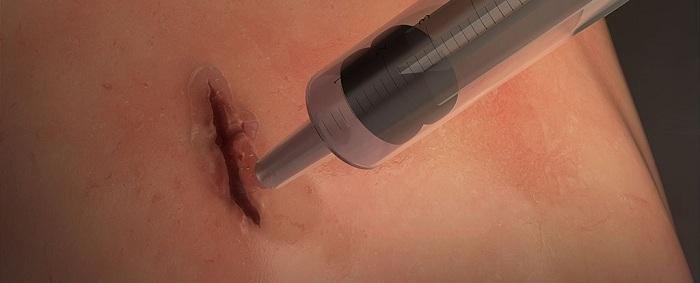 Les scientifiques ont développé la colle chirurgicale qui ferme les plaies en 60 secondes