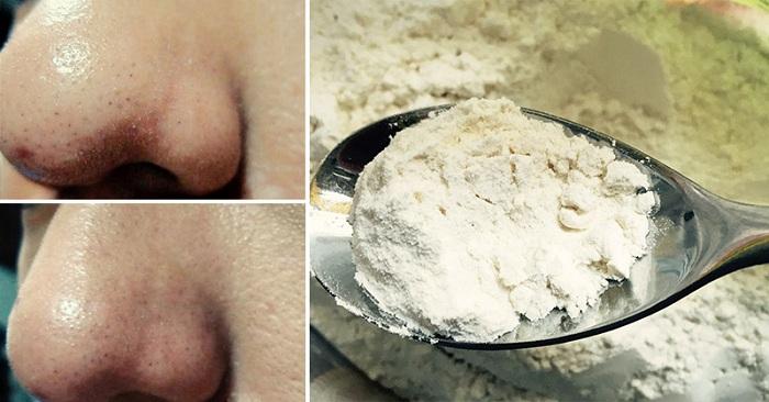 Remèdes naturels à utiliser pour vos soins de beauté !