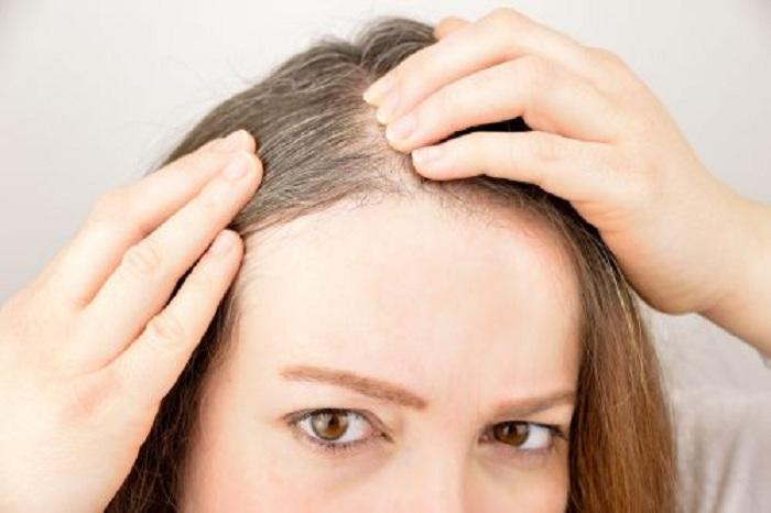 5 herbes et épices qui favorisent la pousse des cheveux