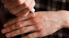Appliquez ces crèmes naturelles sur la peau et dites adieu au psoriasis !