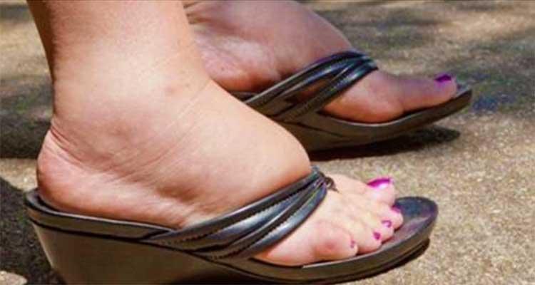 Si vous avez les pieds et les chevilles enflés, vous devez faire une détoxification de lymphe.
