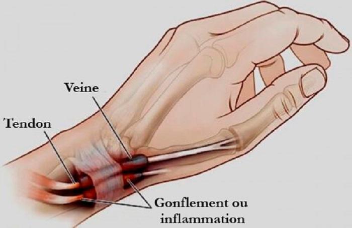 La ténosynovite : l'inflammation des mains et des pieds à connaître