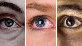 Ce que vos yeux révèlent sur votre état de santé, n'ignorez surtout pas ces signes !