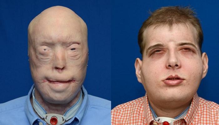 Ce pompier a reçu la première greffe complète du visage…Patrick Hardison mène à présent une vie «normale»!