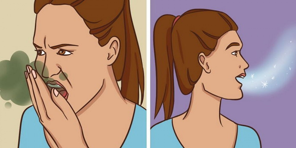 Avec ces remèdes naturels, débarrassez-vous de la mauvaise haleine une bonne fois pour tous !