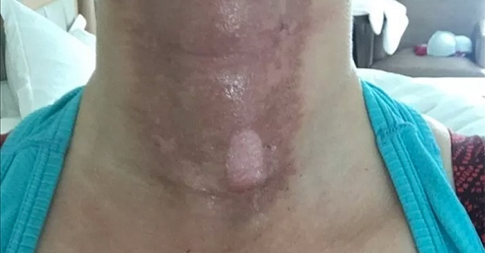 Les photos « choquantes de cette femme », révèlent pourquoi vous ne devez jamais exposer une peau couverte d'huile essentielle aux rayons solaires.