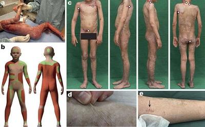 Les scientifiques remplacent 80% de la peau d'un garçon avec de l'épiderme cultivé dans un laboratoire !