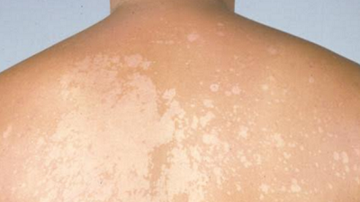 Vous avez des taches blanches qui apparaissent sur la peau ? Voilà ce qui les provoque…