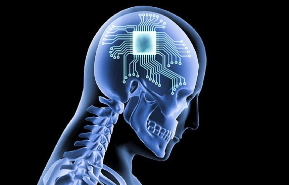 Des implants cérébraux d'intelligence artificielle pouvant changer l'humeur ont été testés sur des humains!