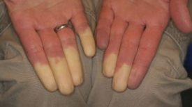 Le syndrome de Raynaud : la maladie qui engourdit vos doigts et changent leur couleur !