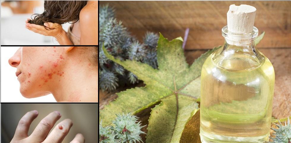 Utilisez l'huile de ricin et du bicarbonate de soude pour guérir votre corps naturellement