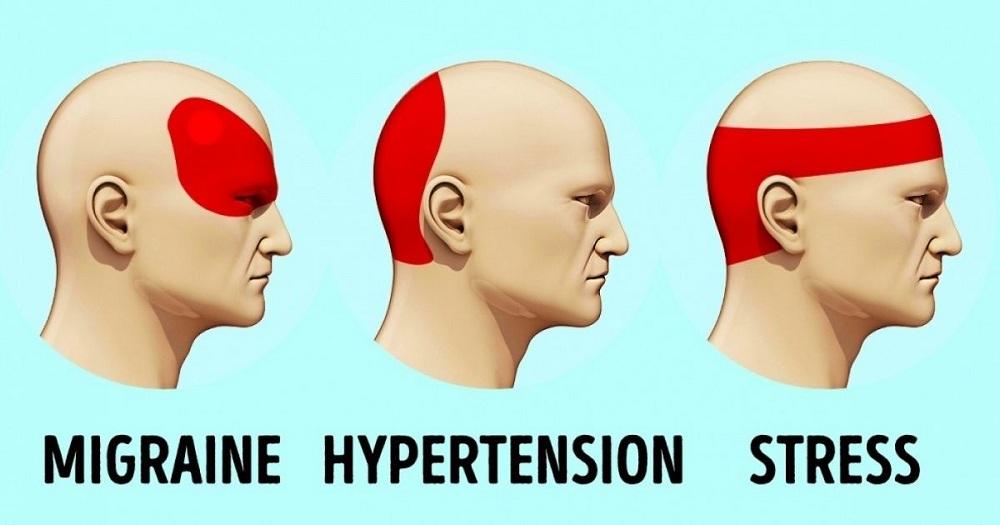 Ce remède soulage le mal de tête en 5 minutes, et c'est gratuit !