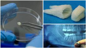 Plus d'implants dentaires, vous pouvez désormais faire pousser vos dents vous-même en seulement 9 semaines !