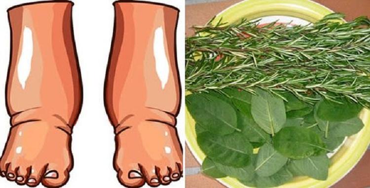 Vos pieds sont-ils enflés ? Voici un simple remède naturel pour soulager l'enflure !