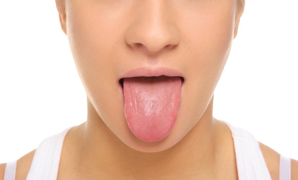 Utilisez ces deux ingrédients pour vous débarrasser des taches blanches sur la langue