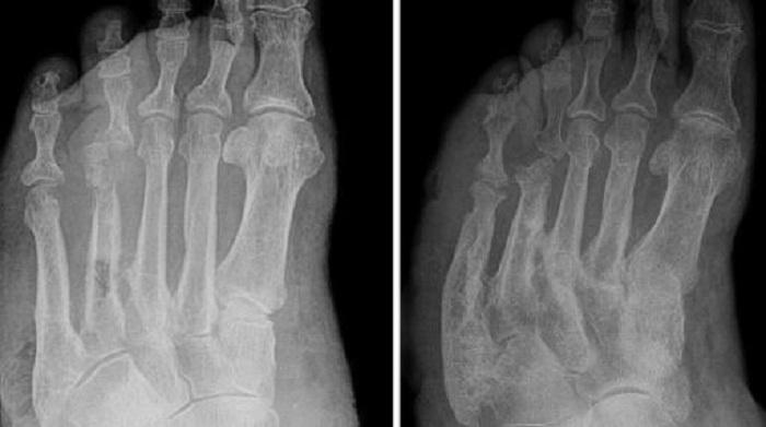 Meilleur remède contre la goutte : Trempez vos pieds dans cette solution pour soulager la goutte !