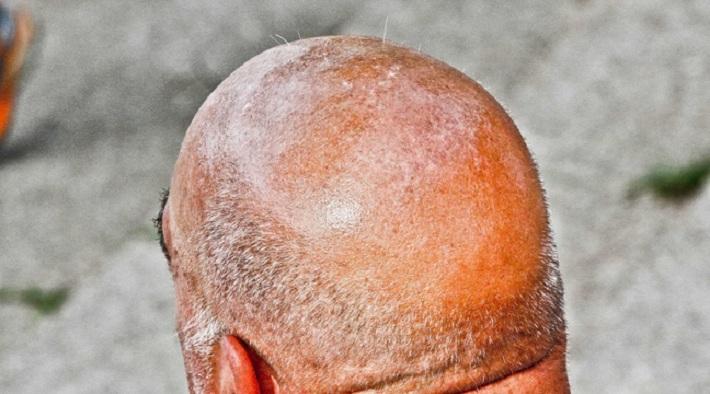 Calvitie : Cette solution de croissance de cheveux des scientifiques japonais pourrait être le remède que vous attendiez depuis longtemps !