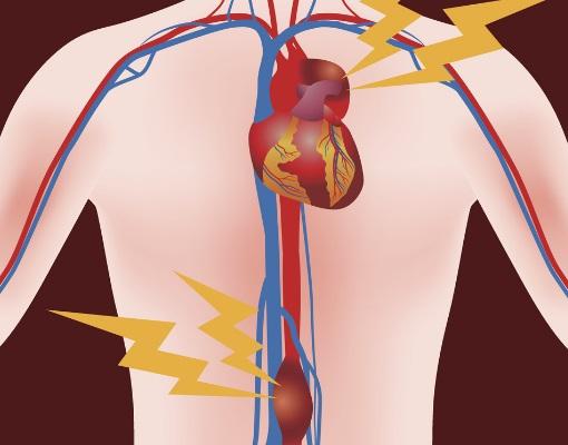 anevrisme-de-l-aorte