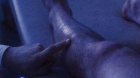 Voici comment soigner naturellement votre déchirure musculaire sans avaler le moindre médicament !