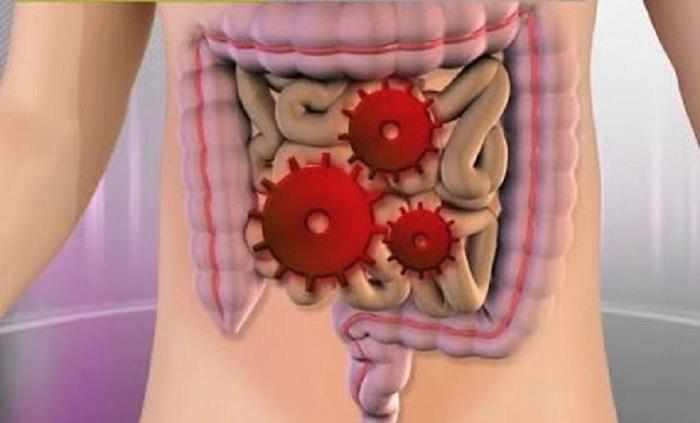 Grippe intestinale : découvrez les symptômes ainsi que les méthodes de traitement et de prévention de la maladie !