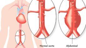 aneurisma-koiliakis-aortis