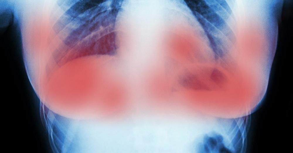 Des chercheurs découvrent un traitement qui détruit les tumeurs du cancer du sein en 11 jours, sans chimiothérapie ni chirurgie.
