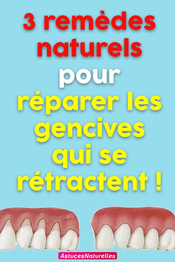 3 remèdes naturels pour réparer les gencives qui se rétractent !