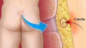 La Maladie pilonidale, découvrez les causes et les moyens de prévention et traitement !