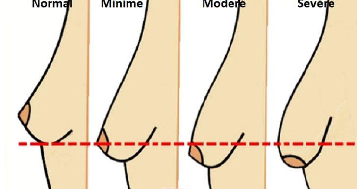 3 façons simples de prévenir l'affaissement des seins