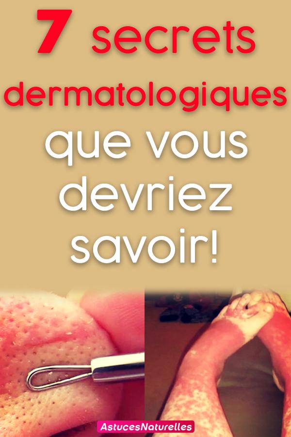 7 secrets dermatologiques que vous devriez savoir!