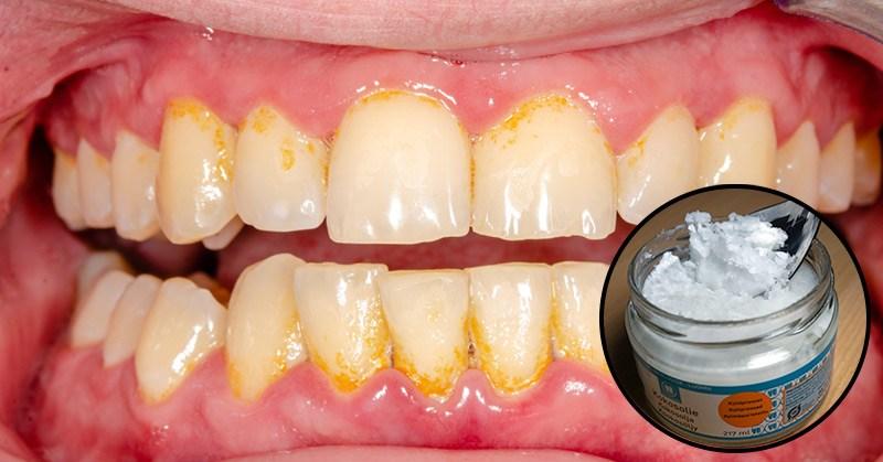 Comment éliminer la plaque dentaire et combattre la maladie des gencives en 7 jours avec l'huile de coco ?